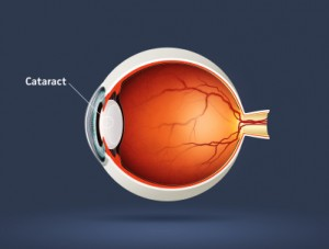 c4e36f9b129 Excessive sunlight exposure may lead to ultraviolet damage to the lens  causing a cataract.